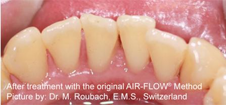 Mondzorg Westfriesland Witte tanden