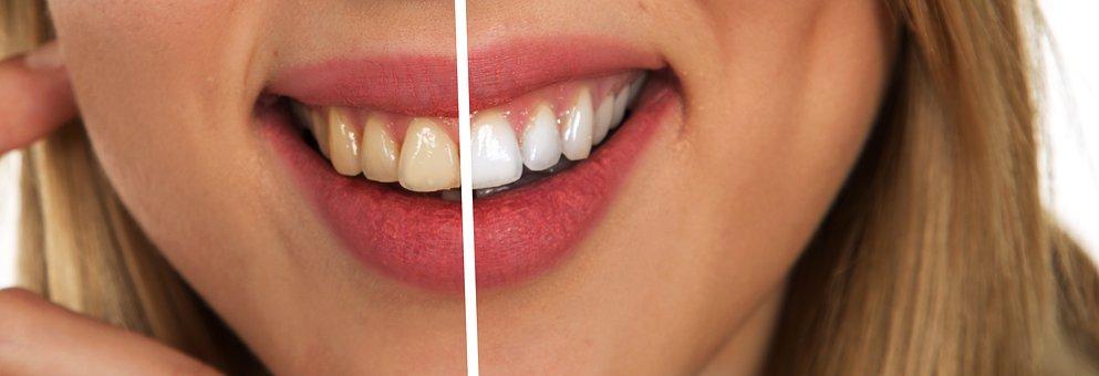 Witte tanden Mondzorg Westfriesland